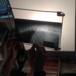 Перелом крестцово-поясничного отдела позвоночника