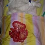 1. Инородный предмет в кишечнике