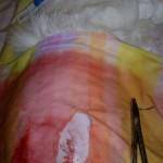 3. После операции