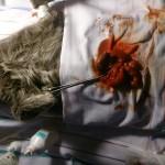 2. Инвагинация в тонком отделе кишечника