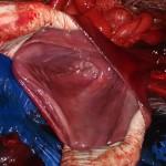 2 осмотр слизистой желудка